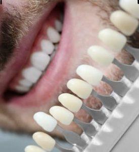 Blanqueamiento dental laser antes y despues de adelgazar